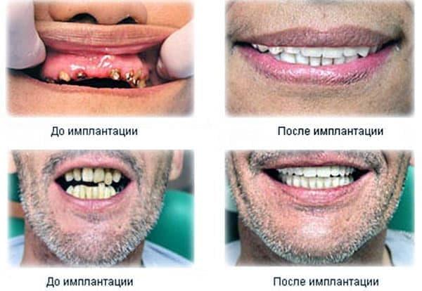 Зубные импланты фото до и после