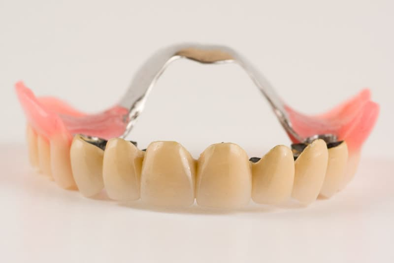 Протез с постановкой зубов на приточке