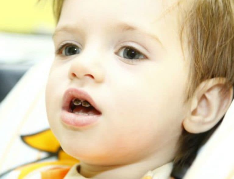 Питание молочные зубы здоровыми