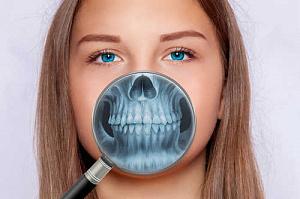 Узкая челюсть: причины, диагностика и методы лечения