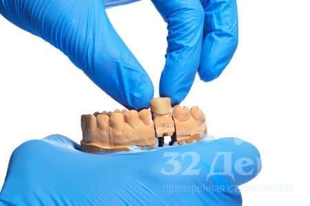 Современная стоматология предлагает такой метод протезирования, который позволяет избежать обточки соседних зубов, – адгезивный, то есть «клеящий» способ крепления.