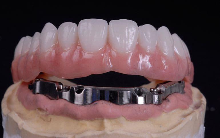 Балочный зубной протез с опорой на импланты при полном отсутствии зубов