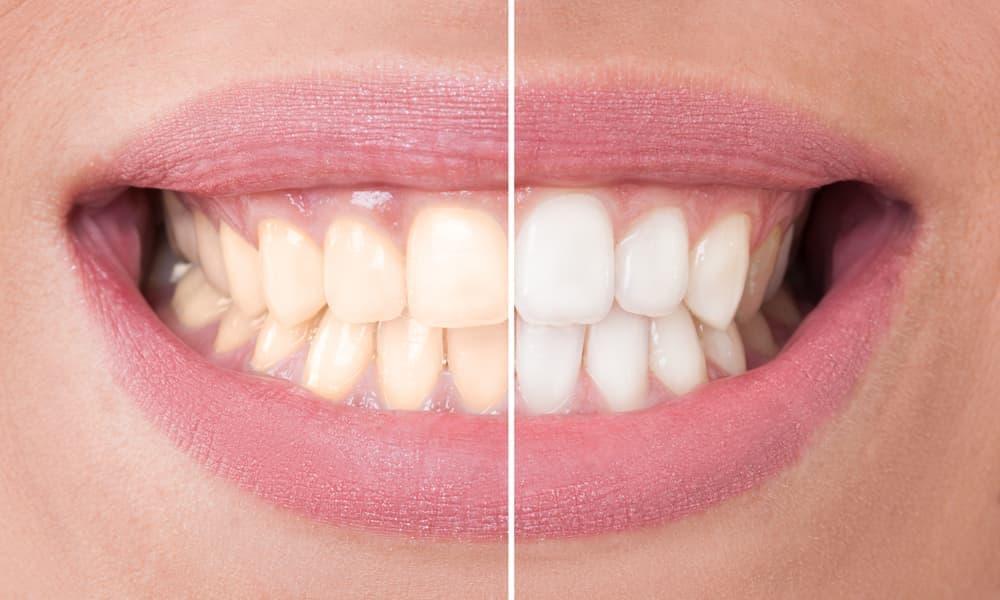 Эмаль зубов человека обычно имеет желтоватый оттенок.
