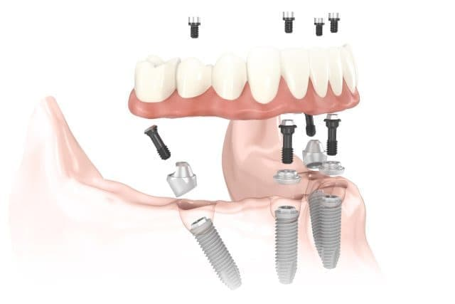 Импланты Nobel при установке протеза All-on-4.