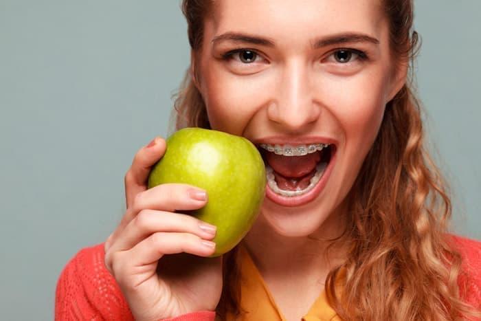 Сапфировые или керамические брекеты смотрятся на зубах больше как украшение, чем стоматологическое приспособление.