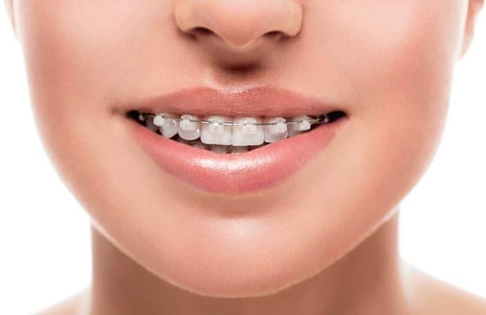 Керамические брекеты можно сделать прозрачными, чтобы они были незаметны на зубах.