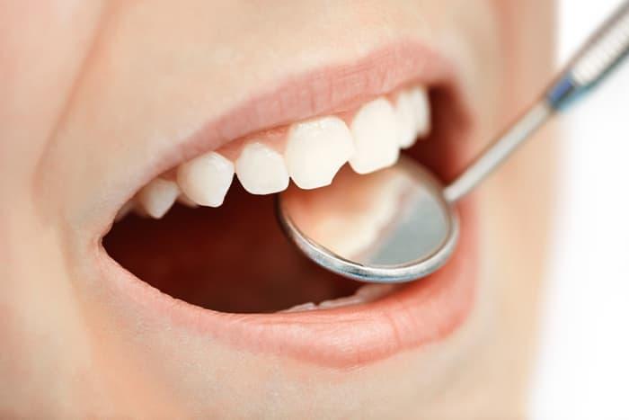 Специфика лечения молочных зубов
