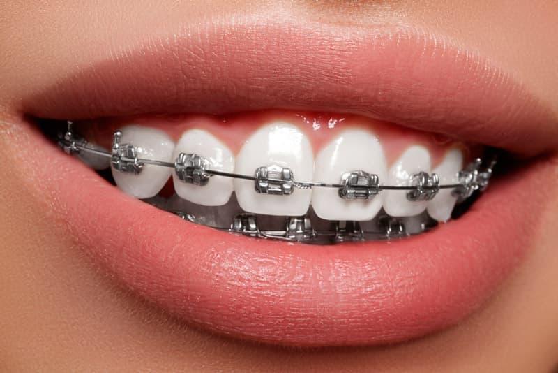 Металлические брекеты отличаются прочностью и высокой эффективностью, хотя и уступают в эстетике.