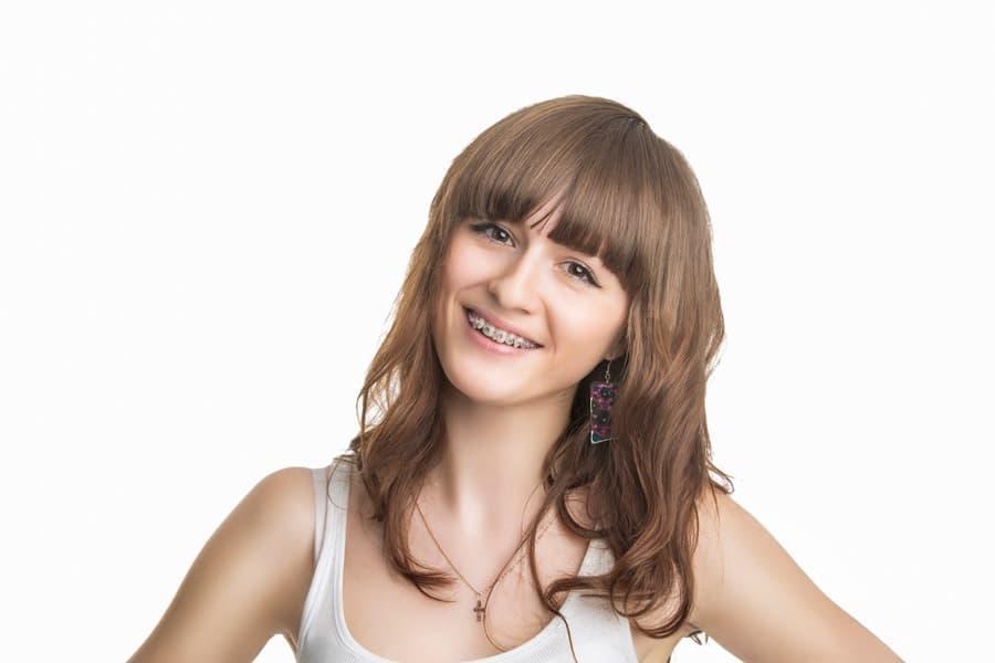Металлические брекеты очень заметны на зубах, но эффективность остается на высоком уровне.