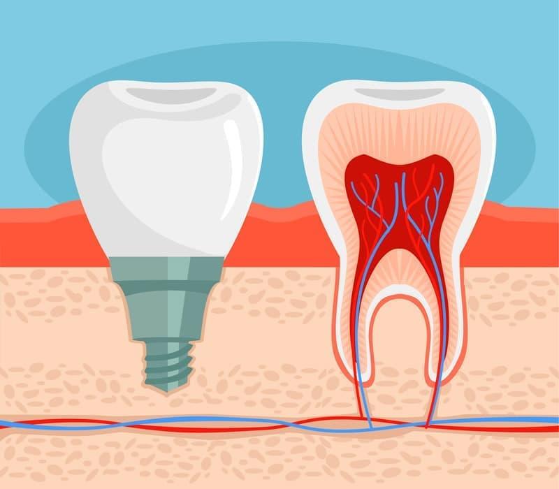 Имплантация – отличный метод протезирования при отсутствии как одного зуба, так и нескольких, вплоть до адентии.
