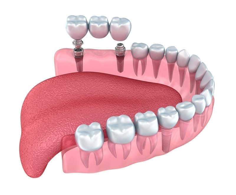 Протезирование на имплантах – популярный и надежный метод восстановления зубного ряда.