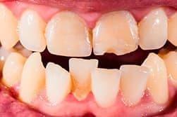 Кривые зубы – не только эстетический дефект, они могут косвенно влиять на функциональность всего организма.