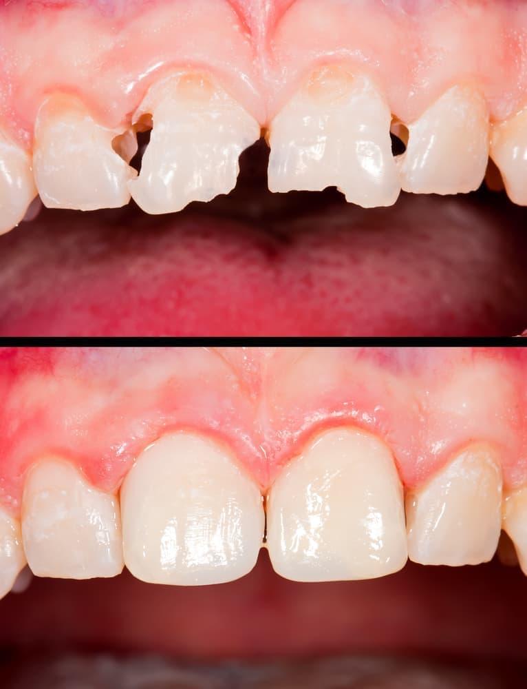 Композитные материалы обеспечивают восстановление зубов максимально эстетично.