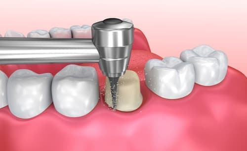 Что такое вкладка в зуб под коронку