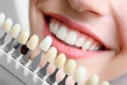 Установка виниров поможет скрыть небольшие дефекты кривизны поверхности зуба.