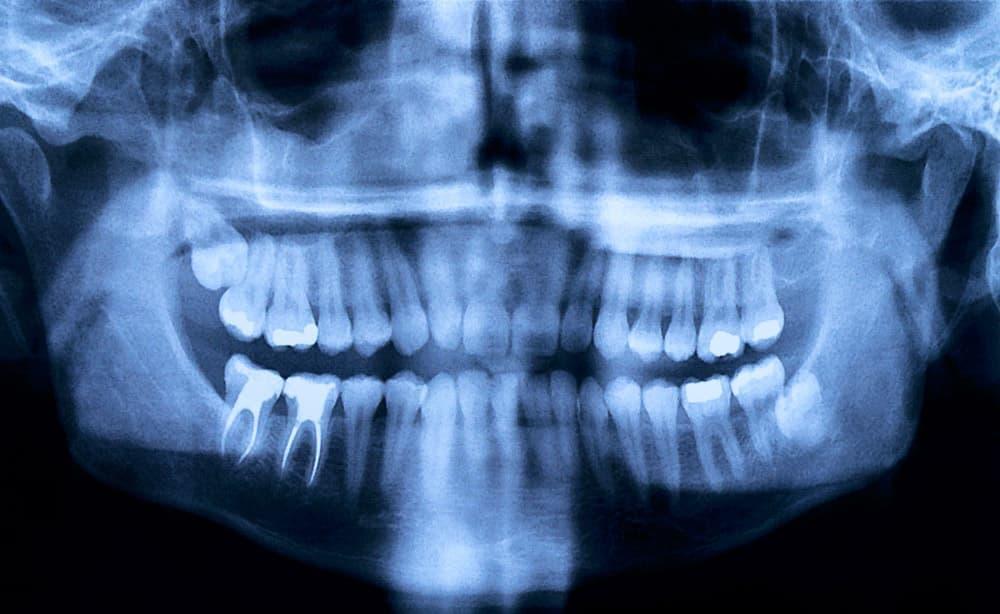 Рентген-снимок (запломбированные корни зуба).