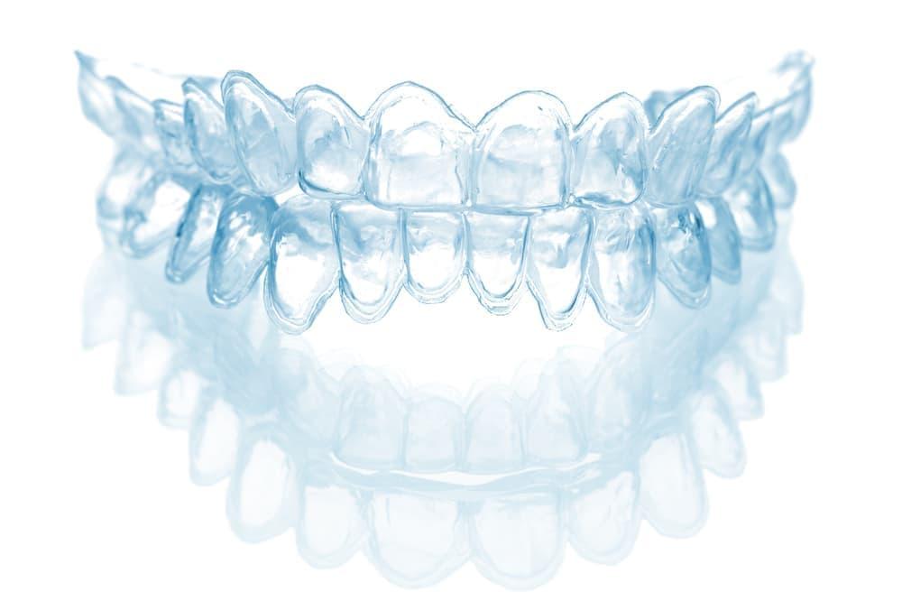 Домашнее отбеливание зубов капами – недорогой и достаточно эффективный метод восстановления белизны эмали.
