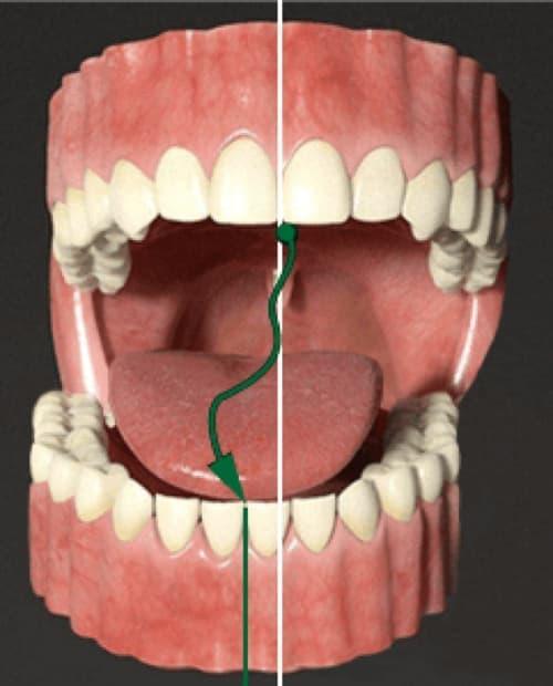 Лечение заболеваний сустава нижней челюсти