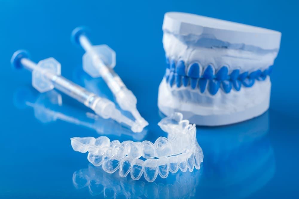 Индивидуальные капы для отбеливания изготавливаются по гипсовым слепкам и наиболее точно подходят к зубам, обеспечивая максимальный эффект.