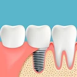 Имплантация позволяет восстановить зубные единицы без обточки соседних зубов.