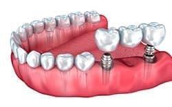 Мостовидный протез на имплантах (протезирование без обточки соседних зубов).