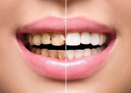 Реставрация зубов композитными материалами – цена