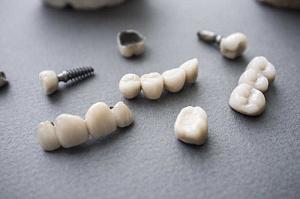 Штампованные зубные коронки