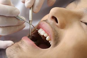 Как избавиться от черных точек на зубах