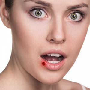 Ожог губы: виды травм и способы лечения