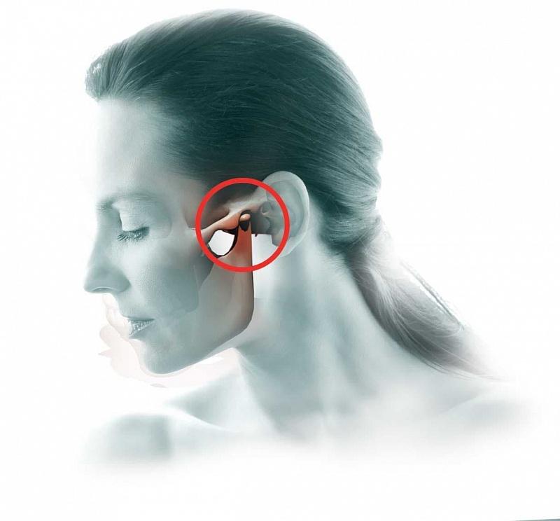 Воспаление височно челюстного сустава лечение гутонг тэгао суставной пластырь купить